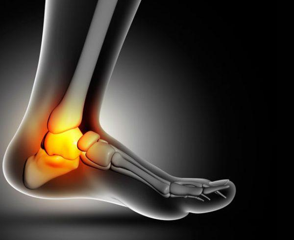 Lesões do tornozelo