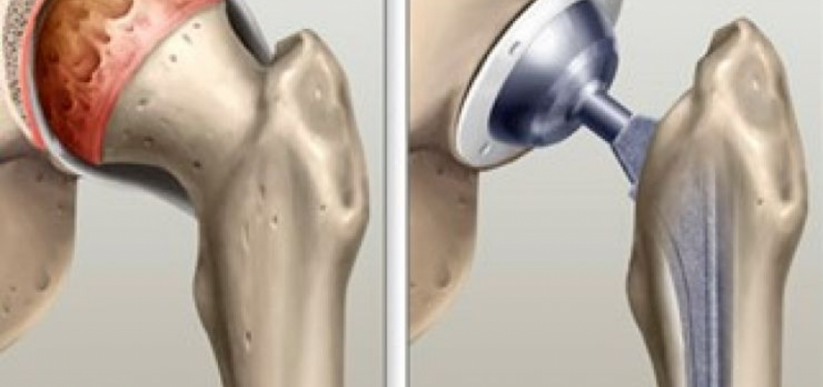 Artroplastia na artrose do quadril